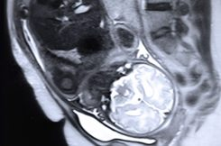 A team led by Polina Golland's group at MIT's Computer Science and Artificial Intelligence Laboratory has made a new algorithm for identifying organs in fetal MRI scans, which should make MRI monitoring much more useful. Pictured is a stock image of a fetal MRI.