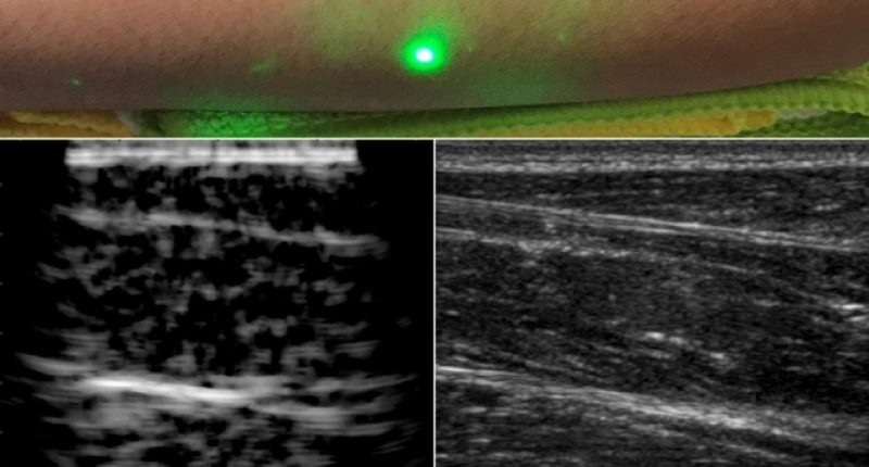 Researchers produce first laser ultrasound images of humans